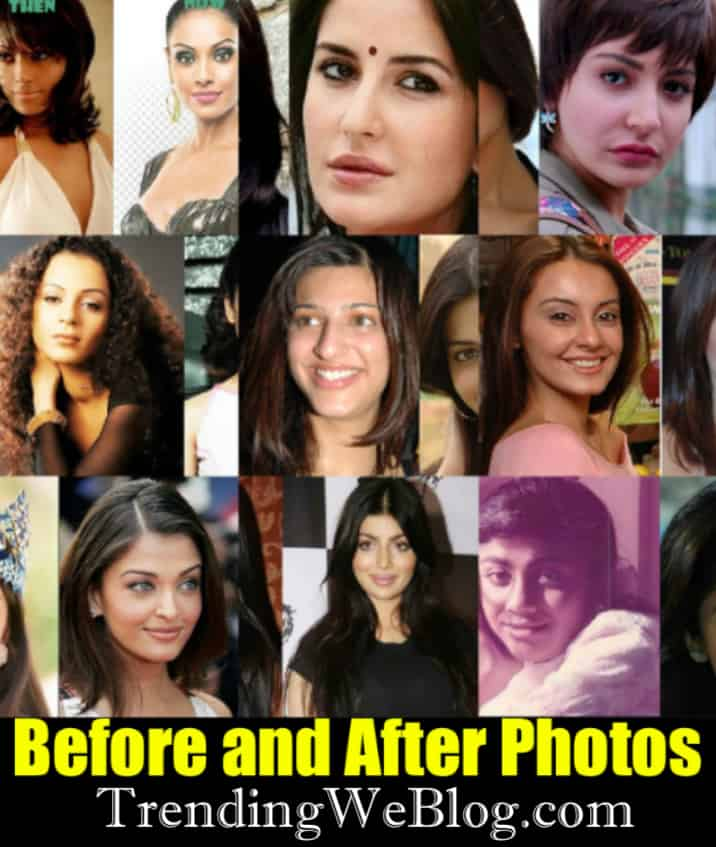 Heroines Plastic Surgery Before And After